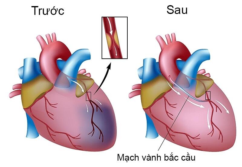 Phẫu thuật bắc cầu mạch vành áp dụng khi nhiều đoạn mạch bị tắc hẹp